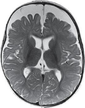 Hidrocefalia externa benigna